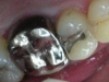 1st-molar-after-cerec-crown