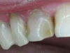 1st-premolar-after-cerec-crown