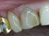 1st-premolar-before-cerec-crown